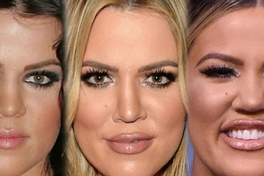 Khloé Kardashian Face Filler Transformation