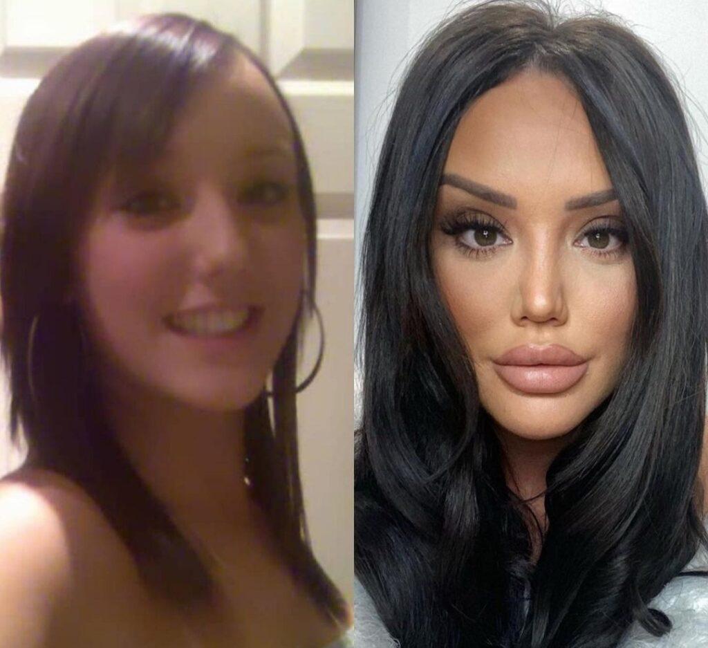 Geordie Shore Cosmetic Surgery